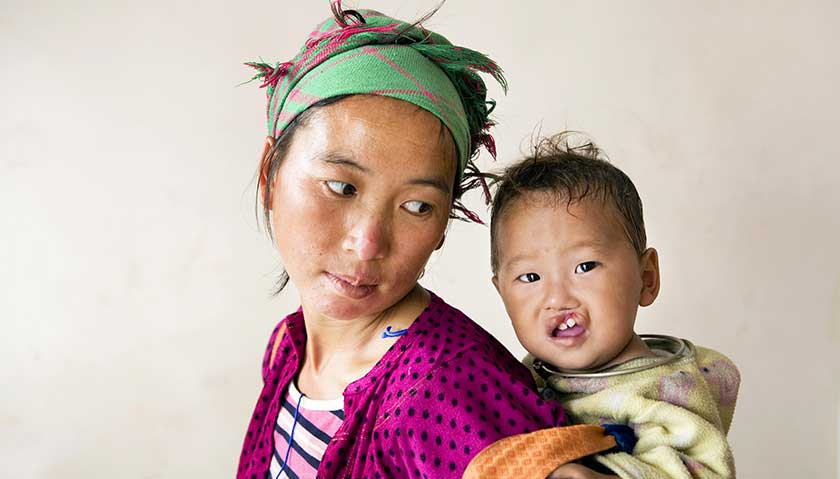 Operation Smile gives children with facial deformities a new start